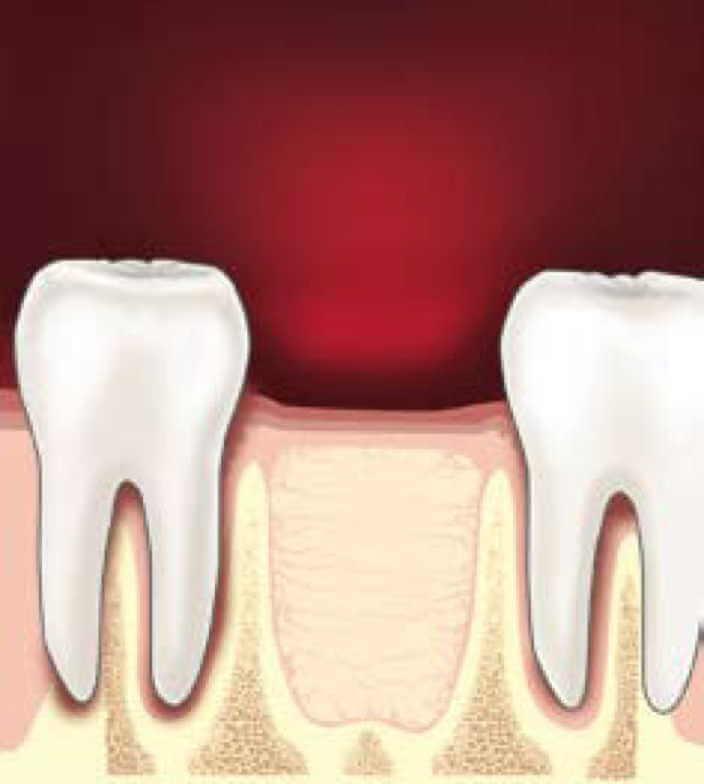 Удаление зуба своими руками